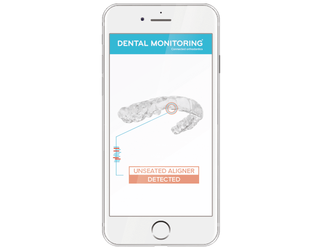 Get started with Dental Monitoring in three simple steps