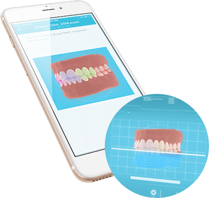 How does Dental Monitoring work?