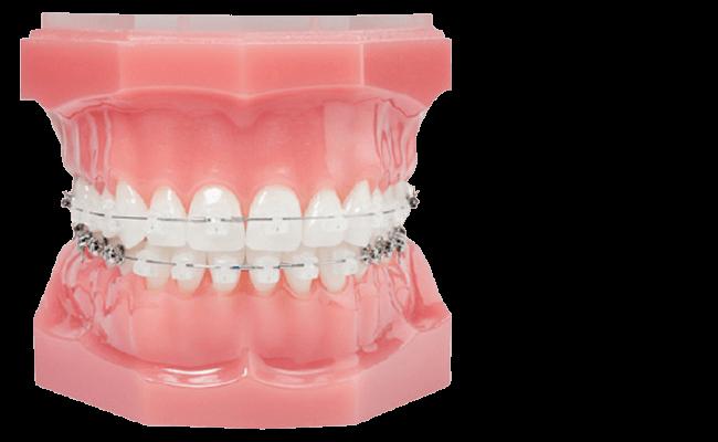 How do clear braces work?