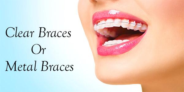 clear-braces-blog-image